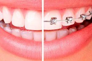 La ortodoncia tiene 7 pasos