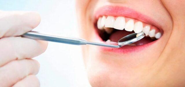 Manchas en el esmalte de los dientes