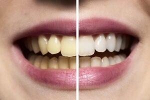 Blanqueamiento combinado: antes y después