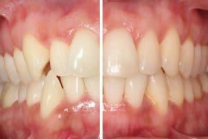 Resultado ortodoncia con férulas transparentes