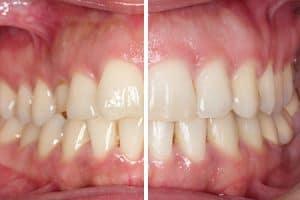 Resultado ortodoncia con brackets metálicos