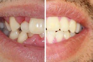 Resultado tratamiento de ortodoncia con brackets transparentes