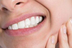 Ortodoncia lingual brackets Incognito
