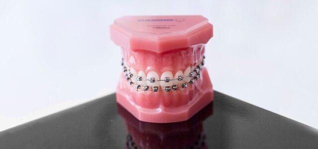 Preguntas sobre ortodoncia