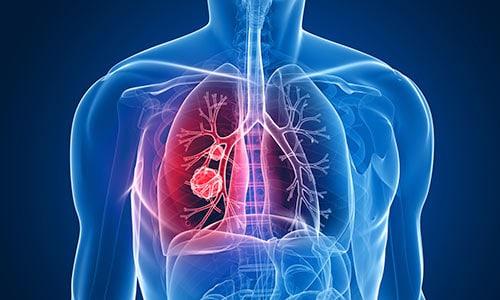 enfermedad-respiratoria-periodontal