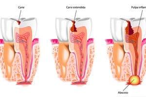 Remedios para la caries dental