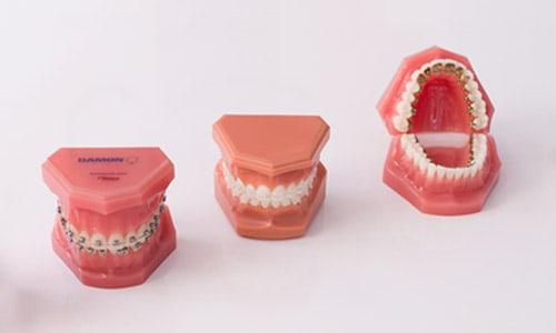 Brackets metalicos zafiro linguales