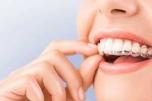 Tratamiento de ortodoncia con Invisalign en Madrid
