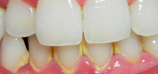 Placa dental calcificada