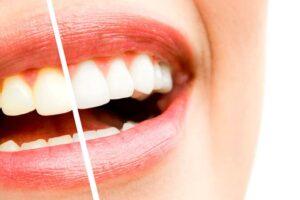 Blanquear los dientes con agua oxigenada