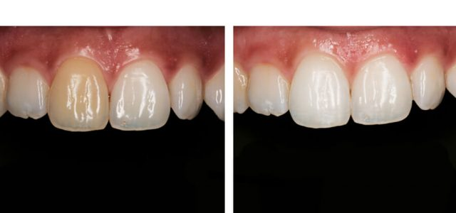 Blanqueamiento dental en diente calcificado