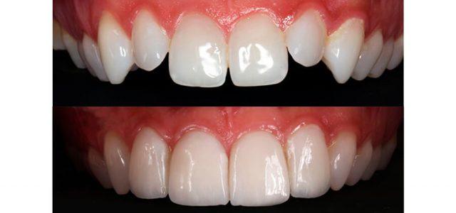 Las carillas corrigen los dientes irregulares