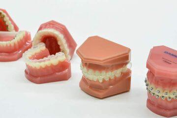 Aparato dental precio