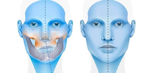 Asimetría facial tratamiento sin cirugía