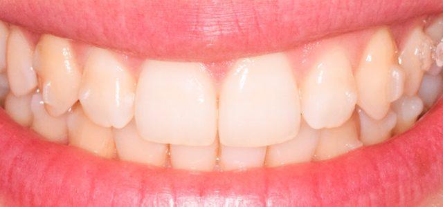 Ortodoncia sin brackets