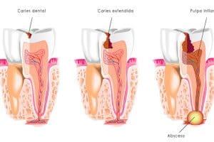 Presencia de la caries dental
