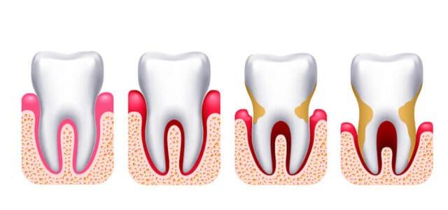 Avance de la periodontitis