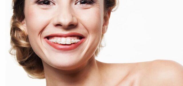 Ventajas de la ortodoncia en adultos