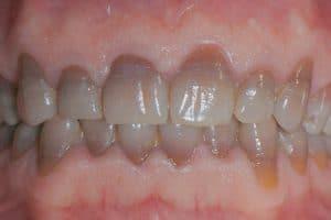 Cómo se blanquean los dientes con mancha por tetraciclinas