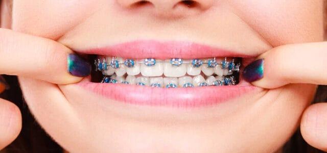 Ligaduras de ortodoncia