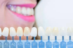 Diferencia entre carilla dental y corona
