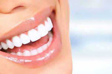 Carillas dentales zirconio
