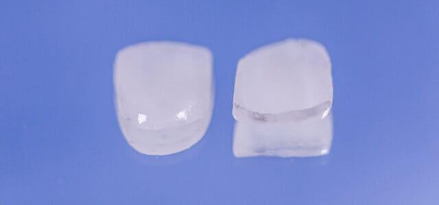Carillas de porcelana y composite