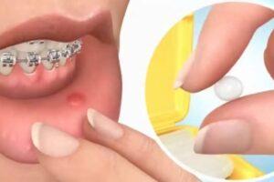 Cera protectora de ortodoncia