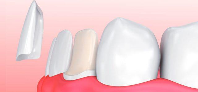 La carilla dental se adhiere al diente