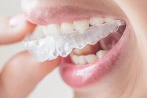 Rutina diaria con ortodoncia