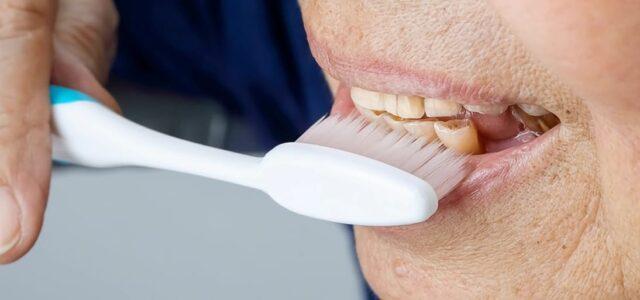 Causas y tratamiento del desgaste dental