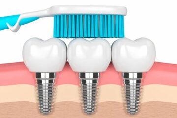 Cómo limpiar los implantes dentales