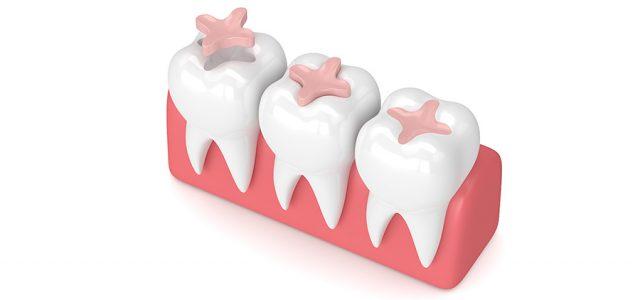 Cómo se pega una incrustación dentaria