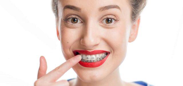 Cuidar ortodoncia