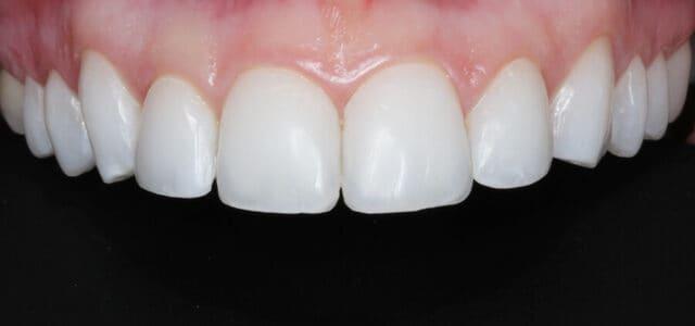 Contorneado de los dientes
