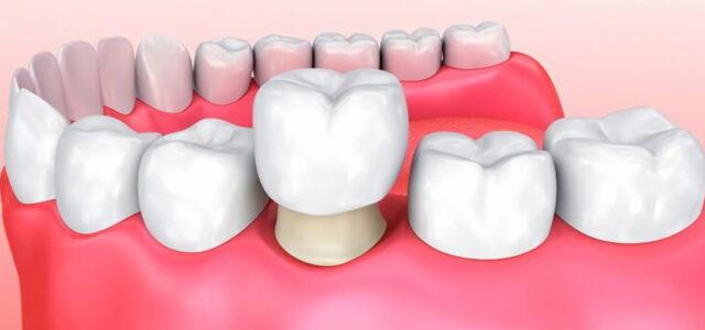 Fundas dentales hechos con zirconio
