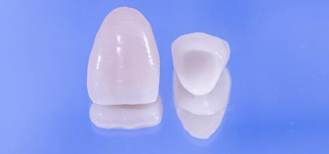 Prótesis dental provisional