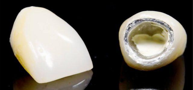 Fundas dentales de metal