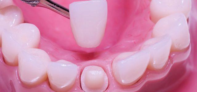 Corona dental de zircionio