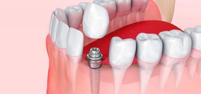 Colocación de una prótesis dental