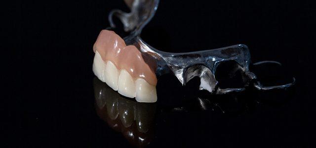 Las prótesis dentales desgastan los dientes