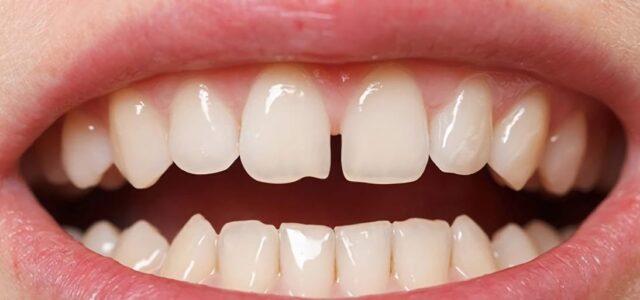 Cómo juntar los dientes separados