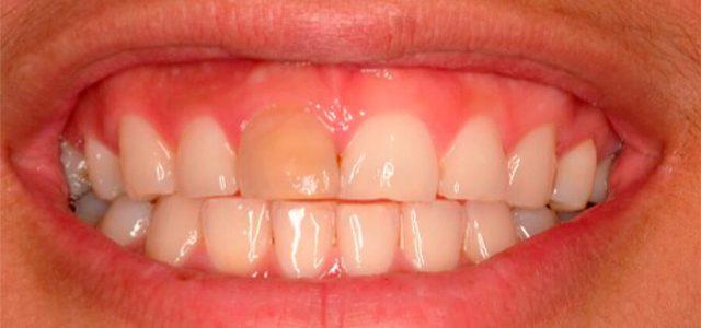 Pieza dental calcificada