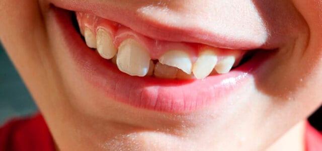 Rotura parcial de un diente