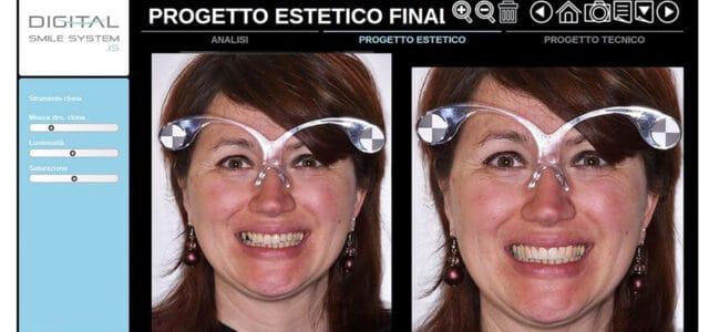 Simulación de diseño de sonrisa