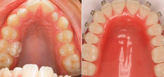 Disyuntor dental antes y después