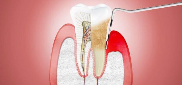 Imagen de enfermedad periodontal