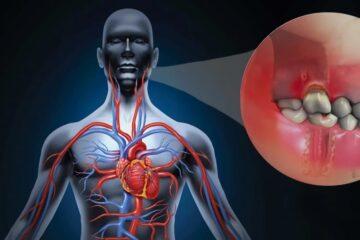 Periodontitis y infarto de miocardio