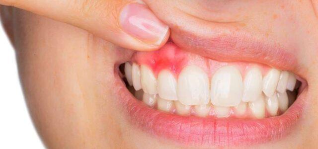 Encías inflamadas por gingivitis