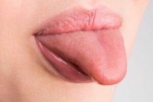 Enfermedades de la lengua y soluciones